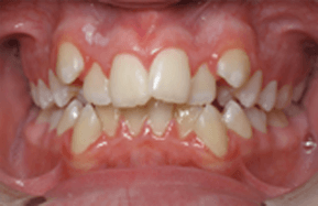 photo of crowding teeth in mouth