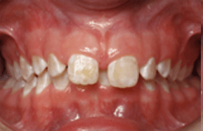photo of gap between two front teeth